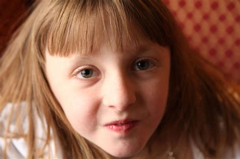 Cure for Turner Syndrome » Cure for Turner Syndrome Images