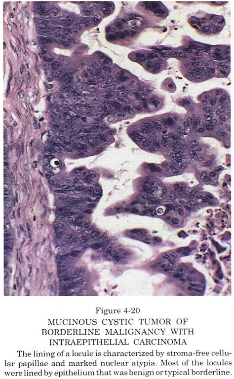Pathology Outlines - Mucinous borderline tumor / atypical